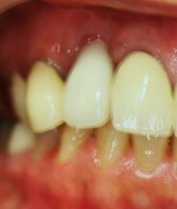 術後本歯装着後