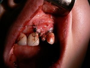 歯肉を縫合
