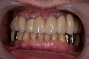 被せ物装着後の口腔内写真 正面