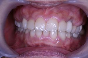 after_前歯