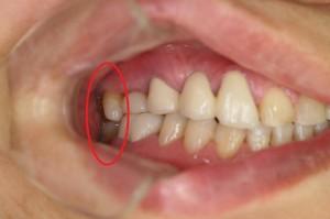 右奥歯のインプラント被せ物装着後の写真