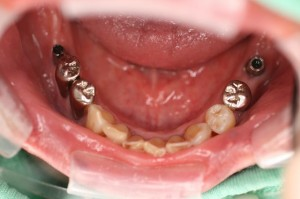 手術後口腔内写真 下顎